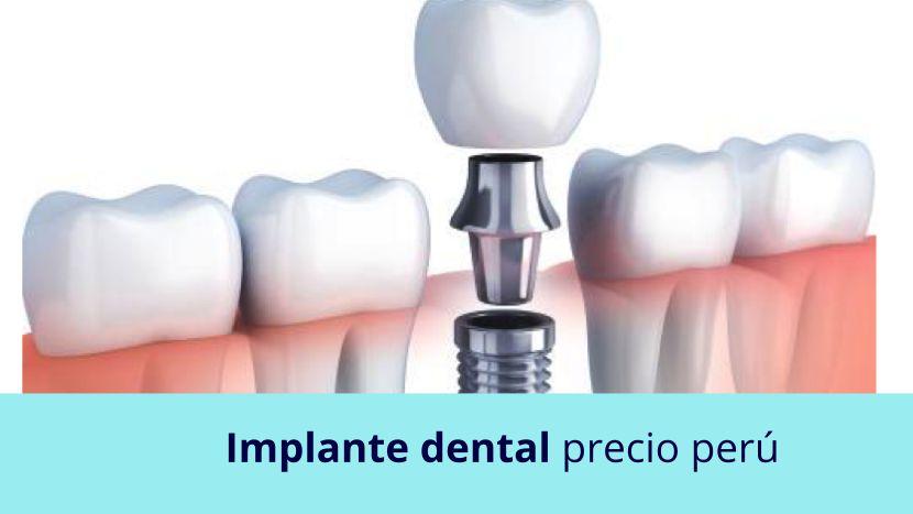 Implante dental precio Perú