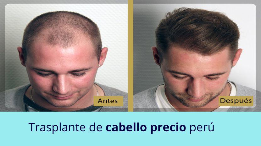 Trasplante de cabello precio Perú